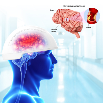 photobiomodulation therapy helmet for Hemorrhagic stroke