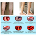 10Pcs Varicose Veins ointment vasculitis treatment Phlebitis Angiitis inflammation blood vessel Rotten legs Varicose Veins Cream