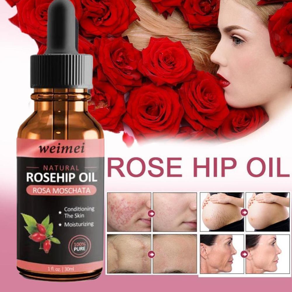 Organic Rosehip Seed Oil Moisturizing Brighten Skin Color Anti-Dry Anti-Aging Face Care Essential Oil