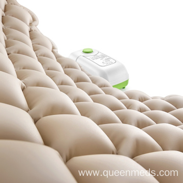 alternating pressure mattress for bedsores