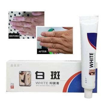 Vitiligo Leukoplakia treatment Cream ointment Chinese Herb Skin Care Repair White Spot Disease Cream Pigment Melanin Promoting