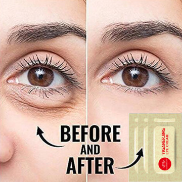 3pcs Original YIGANERJING Anti aging Eye Cream Ageless Eye Cream Serum Instantly Puffiness Remove Cream