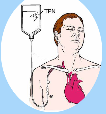 What is TPN bag