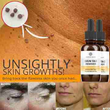 10/20/30ml Skin Tag Remover Mole Foot Corn Wart Care Pure Acid Essence 100% Essence Hyaluronic Serum Natural Oil