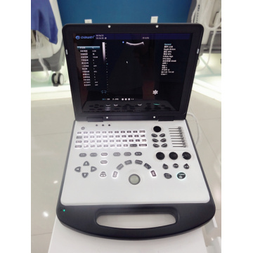 2017 new ultrasound machine