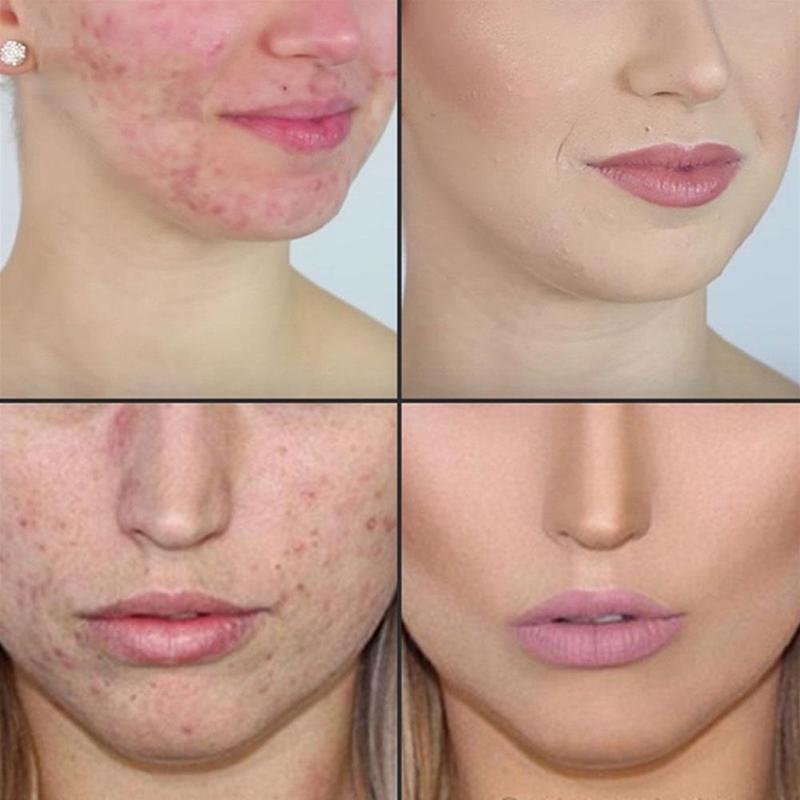Tea Tree Essential Oil Natural Face Care Skin Acne Treatment Blackhead Body Oil Spots Massage Relax Remover Scar Y1K8