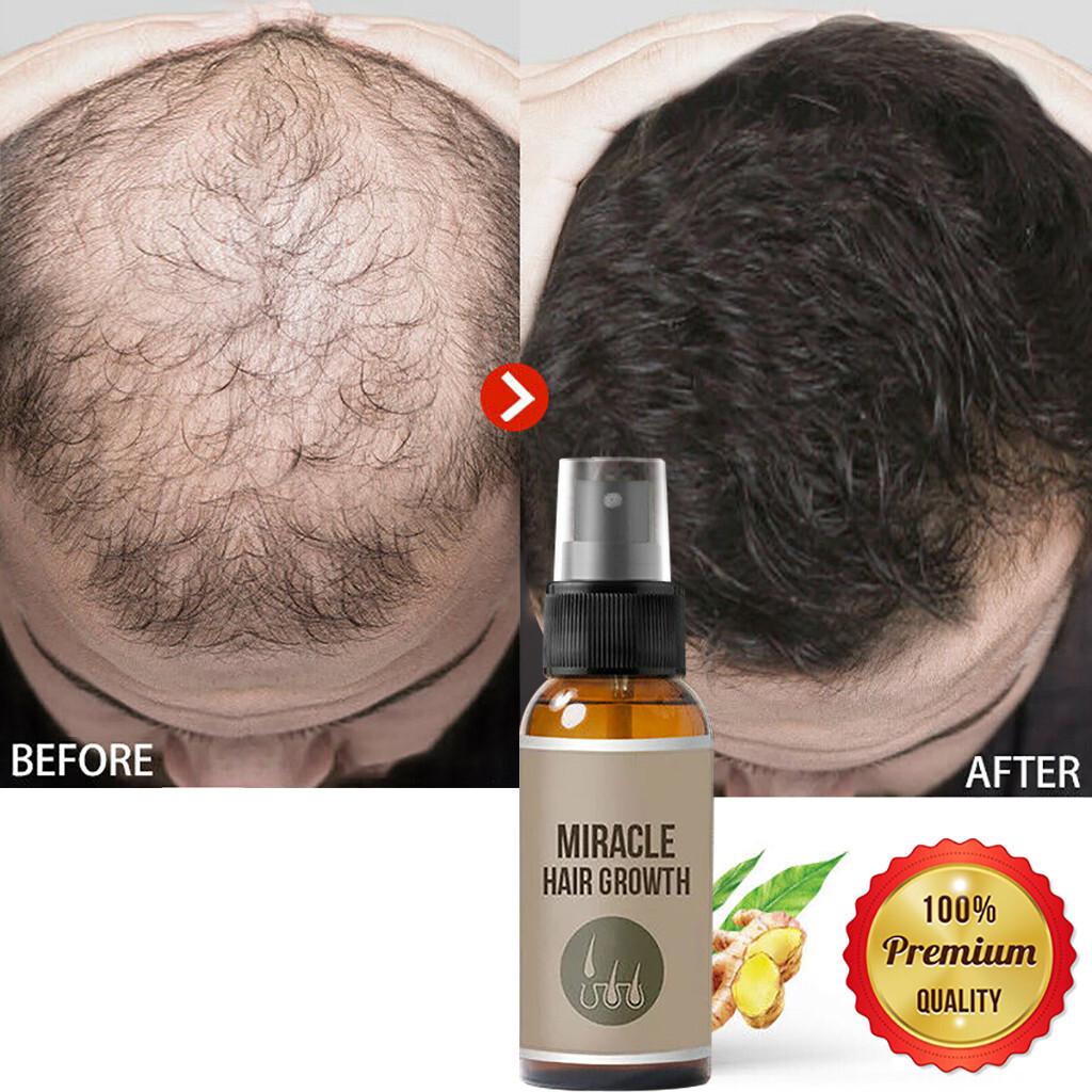New 30/50ml Hair Growth Spray Ginger Essence Spray Effective Extract Anti Hair Loss Nourish Roots Prevent Hair Loss Grow Hair