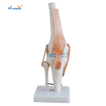 Life-Size Knee Joint Model